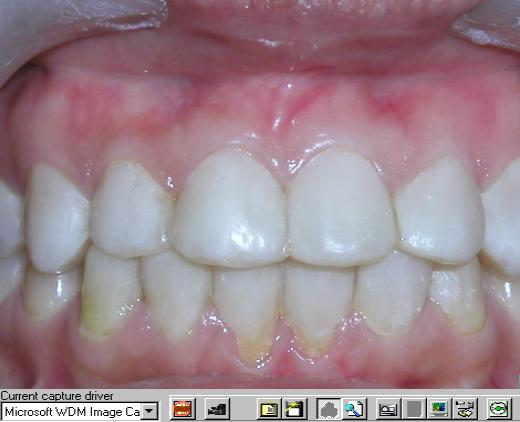 Dental Image Capture