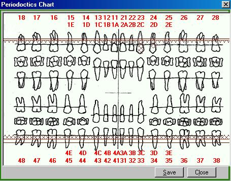 Patient Periodontal Charting